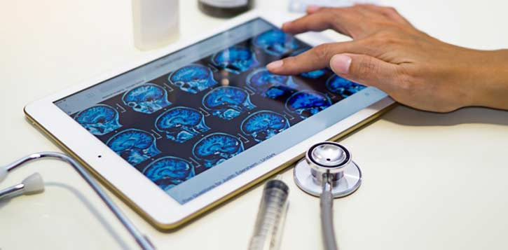 Photo: tablet with brain images on it