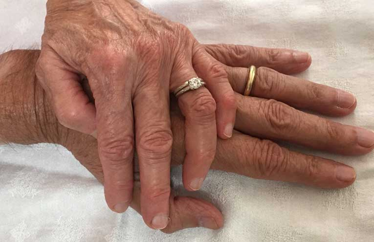 wrinkled hand with wedding rings on top of each other